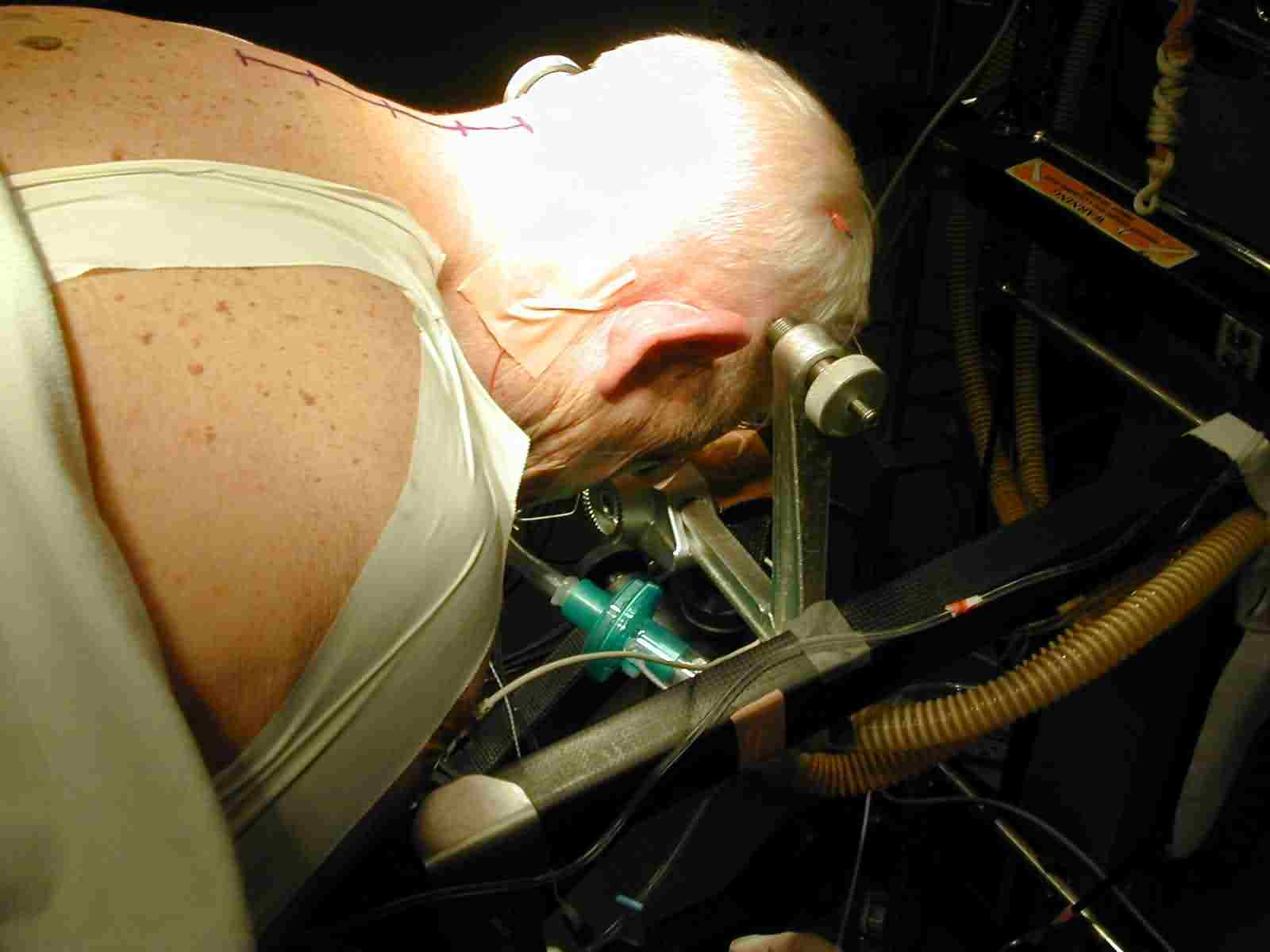 Jackson cervical lami positioning